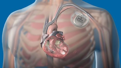 Кардиостимулятор на сердце