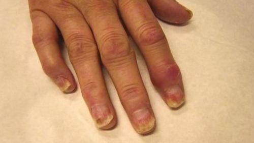 Пальцы, пораженные артритом