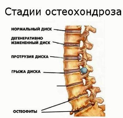 Какие медикаменты принимают при остеохондрозе