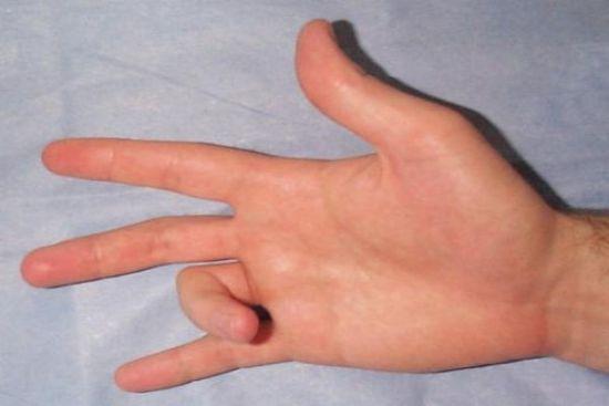 Гимнастика пальцев