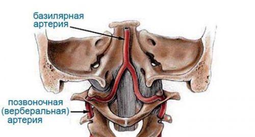 Позвоночная и базилярная артерия