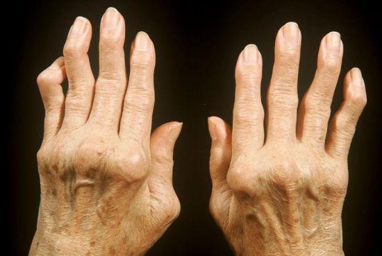 Покрученные суставы на пальцах рук
