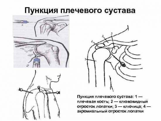 Техника выполнения пункции плечевого сустава