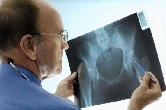 Рентген-снимок тазобедренного сустава