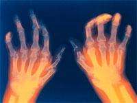 поражение суставов при ревматоидном артрите