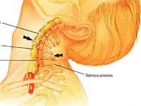 Что делать если болит спина в пояснице у беременных
