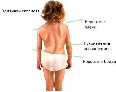 Упражнения лфк для сколиоза 2-3 степени
