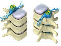 Деформирующий спондилоартроз поясничного отдела позвоночника лечение