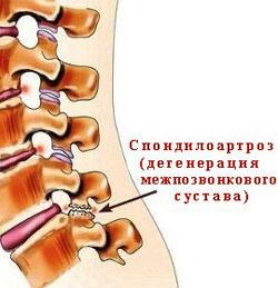 Мази от болей в спине и суставов ног