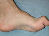 Скрюченная нога