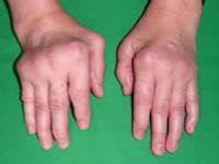 суставы при ревматоидном артрите