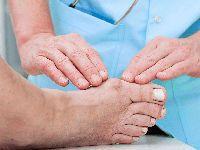 Осмотр пальцев на ноге