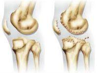 Изменения при артрозе суставов
