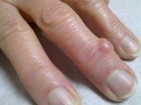 Нарост на пальце руки