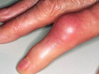 Опухший палец руки