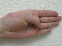 Перелом ладьевидной кости руки