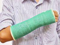 Перелом руки в предплечье