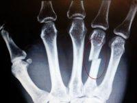 Рентген кисти руки, перелом
