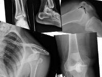 Переломы и вывихи
