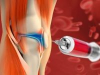 Введение жидкости в коленный сустав