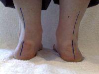 Кривые стопы