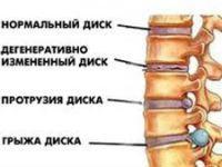 патологии межпозвонковых дисков