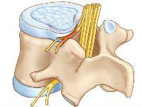 Сдавливание нервного корешка выпячиванием диска