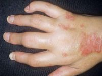 Псориатический артрит суставов кисти
