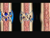Регенерация костной ткани