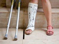 Загипсованная нога
