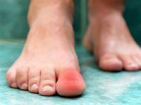 Ушиб пальца на ноге