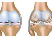 Повреждение хряща коленного сустава
