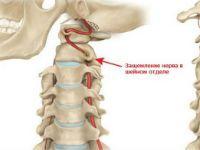 Защемление нерва шеи