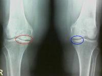 Субхондральный остеосклероз коленного сустава