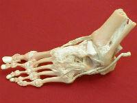 Изображение - Как называется сустав большого пальца ноги sust-stop