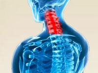 Протрузия межпозвоночных дисков грудного отдела симптомы