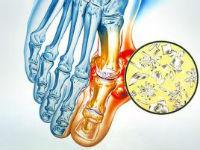 Повреждение сустава при подагре