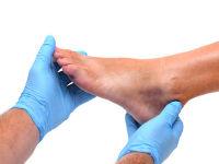 Ушиб лодыжки опухла нога что делать