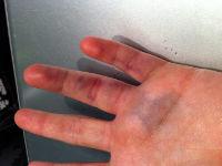Ударил по пальцу молотком ноготь посинел