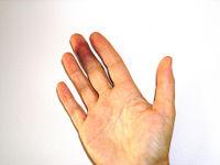 Ушиб пальца на руке