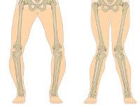 Деформация коленей